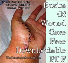 Basics-Of-Wound-Care-Free-Downloadable-PDF Homesteading  - The Homestead Survival .Com