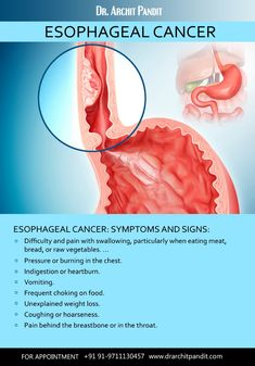 Esophageal cancer is cancer that occurs in the esophagus — a long, hollow tube that runs from your throat to your stomach. Stomach Remedies, Health Remedies, Choking On Food, Medical Clip Art, Real Life Math, Esophageal Cancer, Medical Anatomy, Medical Information, Healthy Weight Loss