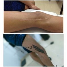 Cobertura, cicatriz... #tattoo #feather #feathertattoo #coverup #scarcoverup #coveruptattoo