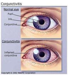 La congiuntivite si distingue dall'episclerite per l'iperemia diffusa dell'intero globo oculare e per la lacrimazione profusa. Nell'episclerite abbiamo iperemia localizzata non accompagnata da lacrimazione.