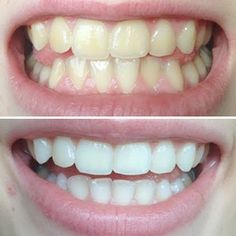 Pin on 家事 Make Beauty, Beauty Care, Human Body Structure, Natural Teeth Whitening, Whitening Kit, Teeth Care, Dentistry, Body Care, Health And Beauty