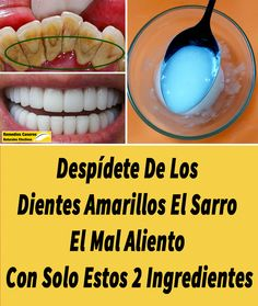 Comoeliminarelsarrodental,RemediosCaserosNaturalesEfectivos-Enjoy the videos and music you love, upload original content, and share it all with friend Beauty Care, Diy Beauty, Beauty Hacks, Teeth Health, Dental Health, Beauty Shots, White Teeth, Hot Dog Buns, Home Remedies
