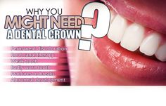A dental crown will repair and protect the compromised tooth, for full functional and cosmetic restoration. Learn more about the procedure and benefits. Dental Crowns, Family Dentistry, Root Canal, Dental Hygienist, Front Desk, Surgery, Teeth, Restoration, Therapy