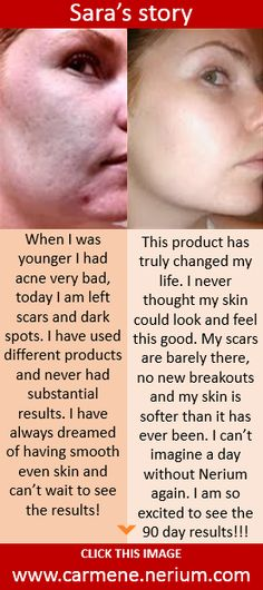 See 1000+ before/after photos of real people with real results. ALL NATURAL product comes with a 30-day money back guarantee. Visit www.carmene.nerium.com and go to RESULTS page.