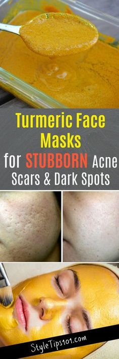 Skin Remedies Turmeric Face Masks - These turmeric face masks serve to cure a multitude of problems including acne, but focus more on eradicating stubborn acne scars and dark spots. Turmeric Face Mask Acne, Acne Face Mask, Tumeric For Acne, Homemade Face Masks, Homemade Skin Care, Beauty Care, Beauty Skin, Diy Beauty, Beauty Hacks