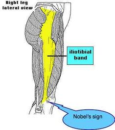 ILIOTIBIAL BAND STRETCH Chiropractic management of the ITB syndrome. explanation, defination, treatment, stretches #backinmotion.us