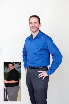 To Beat Obesity Finally Surgical Weight Loss San Antonio Clinics