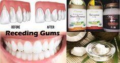 receding gum relief #healthygum
