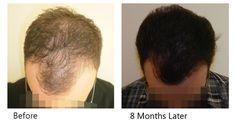 Άρτια αποτελέσματα με… Αποδείξεις!  Οι φωτογραφίες, από πραγματικά περιστατικά, που υπάρχουν στο εξειδικευμένο site της Bergmann Kord για τη Μεταμόσχευση Μαλλιών FUE, θα σας βοηθήσουν να «βγάλτε» τα δικά σας συμπεράσματα !