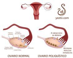 ¿Por qué se enferman los ovarios? « Ginecologia natural