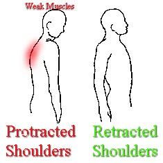 Posture Problems - Exercises for Muscle Imbalances Corrective Stretching  Injury Prevention : AskTheTrainer.com
