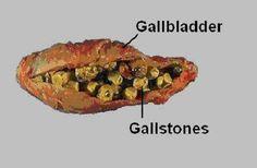 All the Signs of Gallbladder Disease That People Always