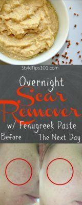 diy overnight scar remover #OvernightAcneBeautyTips Scar Remedies, Home Remedies For Acne, Natural Remedies, Acne Skin, Acne Scars, Acne Mask, Acne Blemishes, How To Get Rid Of Acne, How To Remove