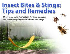 Insect Bites and Stings: Tips and Remedies