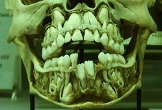 baby teeth...which obviously makes this a child's skull.