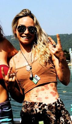 Miss Lanuzza, said: 'My psoriasis looks like red, raised spots and people looked at me as if I was disgusting and they might catch something. I felt so self-conscious about the condition that it was ruining my life'
