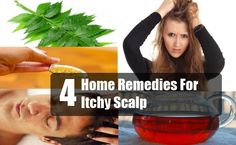 Home Dandruff Remedies ~ 4 Home Remedies For Itchy Scalp