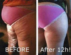 DIY Thigh Wraps For Cellulite