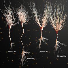 Espectaculares reconstrucciones gráficas de neuronas en 3D