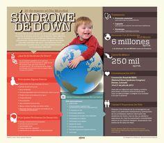 El síndrome de Down es una de las causas genéticas más comunes de retraso mental o de desarrollo.