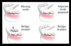 Restoration of missing teeth:- - Broken tooth - Cavity of the tooth We do tooth colored fillings and Root Canal to save the tooth. This tooth if needed will be given a crown which is procelin.  For Missing teeth: Crown, Bridges, Dental Implants At unbelievably low costs.