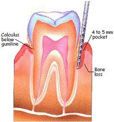 Periodontal Disease - bone loss is measure with a Probe (dental instrument that measures in mm); Dental Hygiene School, Dental Humor, Dental Assistant, Dental Hygienist, Oral Hygiene, Dental Implants, Dental Health, Dental Care, Tooth Decay In Children