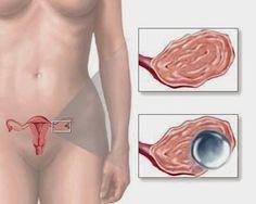 Spotlifes: Τι είναι η ωορρηξία