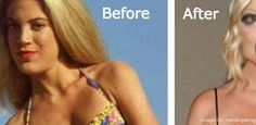 These Celebs Ruined Their Bodies With Plastic Surgeries