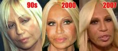 Before and After Plastic Surgery - Donatella Versace