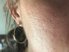 Treating acne and its stubborn scar is not an easy task; However, we all are pretty much aware that most medicines for acne scar removal are available at local medicine shops. Acne Scar Removal Treatment, Back Acne Treatment, Acne Treatments, Scar Remedies, Natural Acne Remedies, Acne Pit Scars, Chemisches Peeling, Aloe Vera Creme, Acne Help
