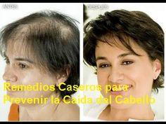 ¿Te Atormenta La Pérdida De Cabello? ¡Agrégale Estos Dos Ingredientes Secretos A Tu Champú! - YouTube
