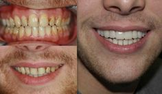 10 Componeer direct veneers for an instant transformation for our @Smiles4Heroes patient just in time for his wedding