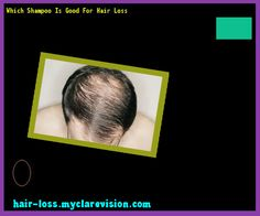 Which Shampoo Is Good For Hair Loss 140608 - Hair Loss Cure!
