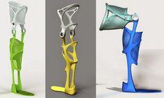 KAFO Splint — 3D Printed Leg Brace Customized for a Perfect Fit