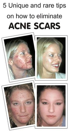 Who likes scars and that too on face! Getting rid of acne scars is a little tougher than eliminating acne actually. Pimples can be naturally treated with many ingredients having anti-inflammatory o...