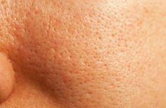 Le traitement naturel des pores dilatés - Améliore ta Santé
