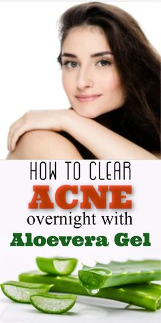 How to Clear Acne Overnight With Aloe Vera Gel - Glowpink Aloe Vera For Hair, Aloe Vera Gel, Home Remedies For Acne, Acne Remedies, Clear Acne Overnight, Pimples On Forehead, Oily Skin Care, Fitness Nutrition, Beauty