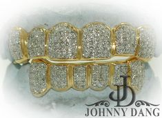 - Special Hand Prong Setting Diamond Grill, Johnny Dang & Co Gold Rings Jewelry, Black Jewelry, Simple Jewelry, Wedding Jewelry, Diamond Grillz, Diamond Teeth, Jewelry Model, Jewelry For Her, Jewelry Illustration