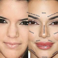 Why celebrities like Bella Hadid, Ariana Grande, and Kylie Jenner are suspected of having Botox brow lifts. Kendall Jenner Plastic Surgery, Celebrity Plastic Surgery, Kylie Jenner Surgery, Kylie Jenner Nose Job, Kendall Jenner Eyebrows, Face Plastic Surgery, Bad Plastic Surgeries, Lip Surgery, Plastic Surgery Photos