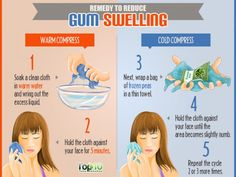 Home Remedies to Reduce Gum Swelling - Tooth Decay Gum Health, Oral Health, Mental Health, Medicine For Tooth Pain, Tooth Decay In Children, Gum Disease Treatment, Top 10 Home Remedies, Natural Remedies