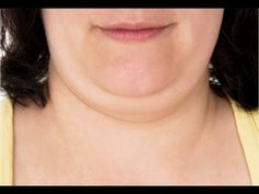 How to Get Rid of Double Chin Fast - YouTube