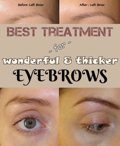 Best treatment for wonderful and thicker eyebrows - 101BeautyTips.org