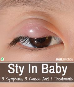 Sty In Baby – 3 Symptoms, 3 Causes And 2 Treatments