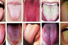 Chinese medicine has been studying the health of the tongue for thousands of years. In fact, knowledge of the tongue comes from Chinese medicine. They describe the health of the tongue through three key factors: color, shape and texture. Healthy Tongue, Tongue Health, Healthy Tips, How To Stay Healthy, Sinus Infection, Chinese Medicine, Japanese Medicine, Health And Beauty, Natural Remedies