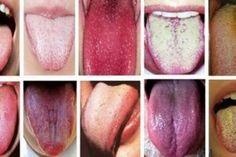 Jazyk je zrkadlo nášho tela. Odhaľte problémy a zabráňte tak chorobám vďaka farbe svojho jazyka Healthy Tongue, Tongue Health, Healthy Tips, How To Stay Healthy, Keeping Healthy, Healthy Habits, Sinus Infection, Chinese Medicine, Japanese Medicine