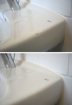 Chipped Bathroom Sink Repaired By Plastic Surgeon.