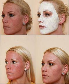 Ein Peeling mit Trichloressigsäure (TCA) bewirkt je nach Konzentration ein oberflächliches bis mitteltiefes Abschälen der Haut. Durch die Behandlung können feine Falten und Altersflecken beseitigt werden. Ziel ist eine weichere, erheblich frischere, jünger wirkende Haut. Ein TCA-Peeling wird vorwiegend im Gesicht angewendet, ist aber auch zur Behandlung von Hals, Dekolleté, Armen und Händen geeignet. Unmittelbar vor der Behandlung sollte die Haut – um Infektionen zu vermeiden – gründlich…