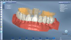 The use of dental CAD allows to move in digital every single manual operation.Thanks to an intuitive interface with a very low learning curve, all users can optimize the results in terms of costs and time.