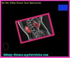 How Does Kidney Disease Cause Hypertension 115459 - Start Healing Your Kidneys Today!