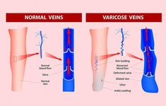 Get Rid Of Varicose Veins Varicose Veins and Water Retention: What is the Connection? - Does Water retention Develop Varicose Veins? Varicose veins are more likely to occur in women than men. Read how Varicose veins are connected to water retention Varicose Veins Causes, Varicose Vein Remedy, Water Retention Remedies, Operation, Blood Vessels, Acupressure, Natural Home Remedies